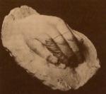 ილიას მარჯვენა ხელის მტევანი, თაბაშირი, შესრულებული ფ. ხოდოროვიჩის მიერ