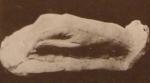 ილიას მარჯვენა ხელის მტევანი, თაბაშირი, შესრულებული ფ. ხოდოროვიჩის მიერ.